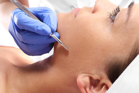 closeup of dermaplaning process