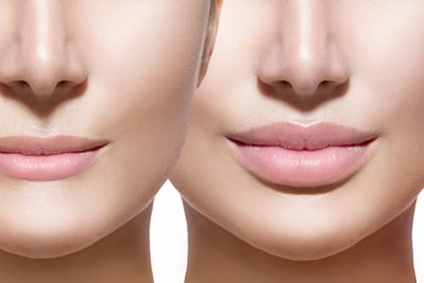 Dysport Plus Dermal Fillers
