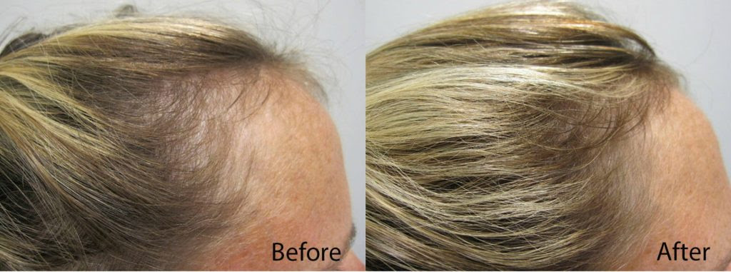 PRP for hair restoration Maryland